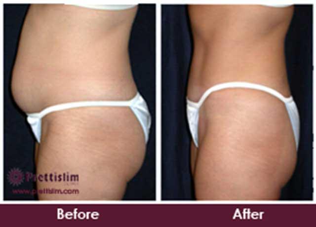 U-Lipo-Tummy-Tuck-Before-&-After-Prettislim-Mumbai