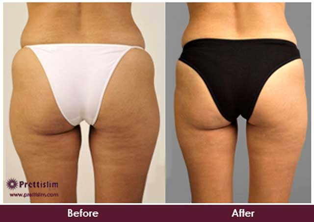 Before and After Buttock Lift
