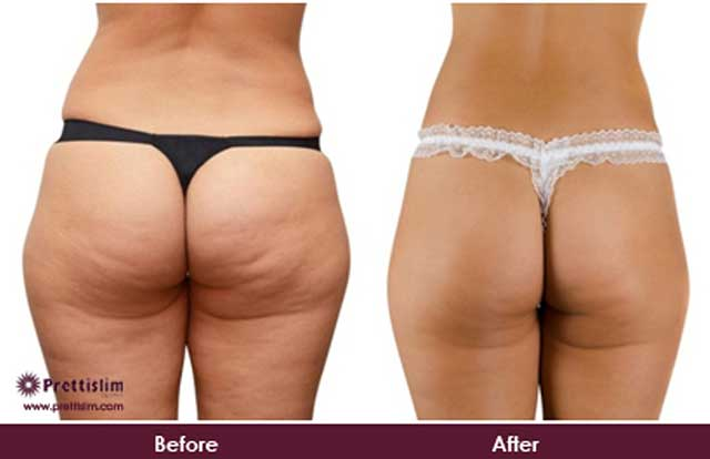 Buttock Lift Before and After