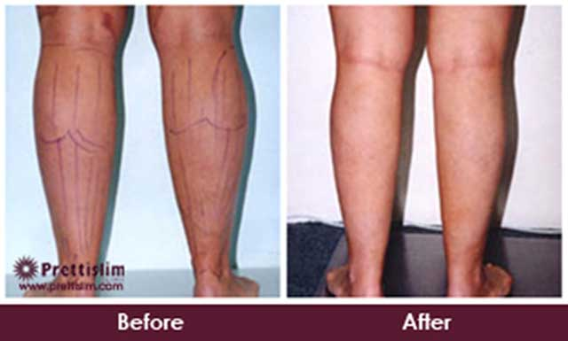 Calf Fat Reduction Before and After