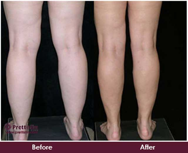 Calf Tuck Before and After