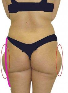Get Rid of Saddlebags