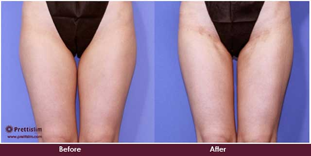 Inner Thigh Lift Before and After
