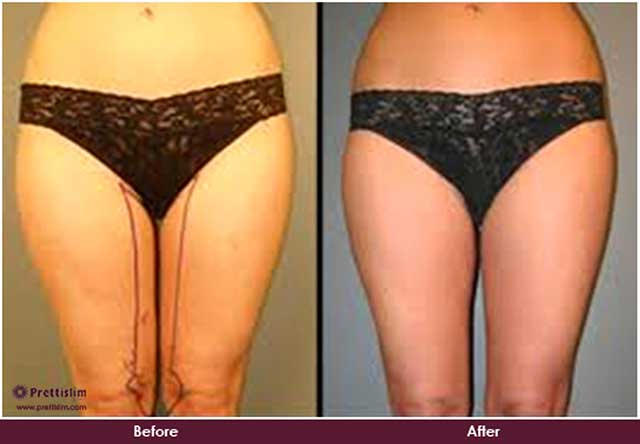Inner Thigh Lipo Before and After