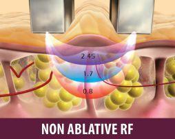 Non Ablative RF