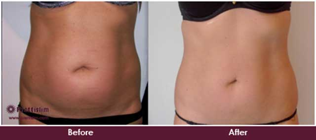 Non Surgical Tummy Tuck Before and After