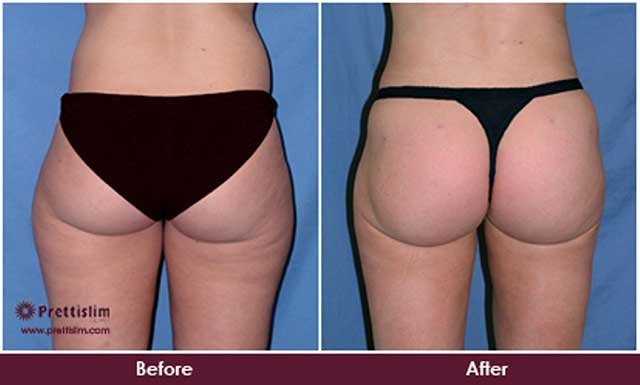Saddlebags Before and After