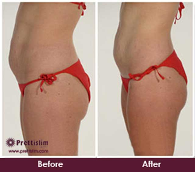 Thigh Lipo Before and After