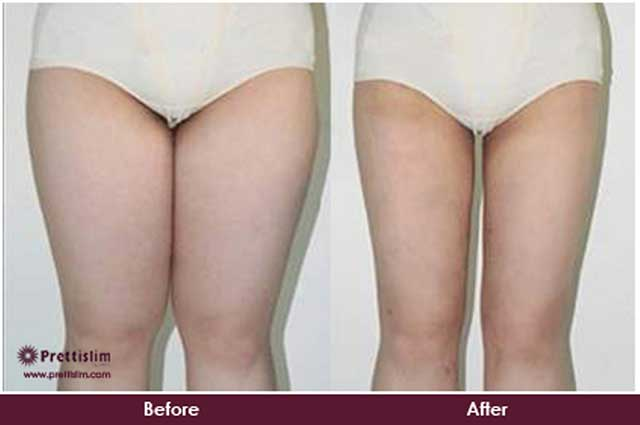 Thigh Tuck Before and After