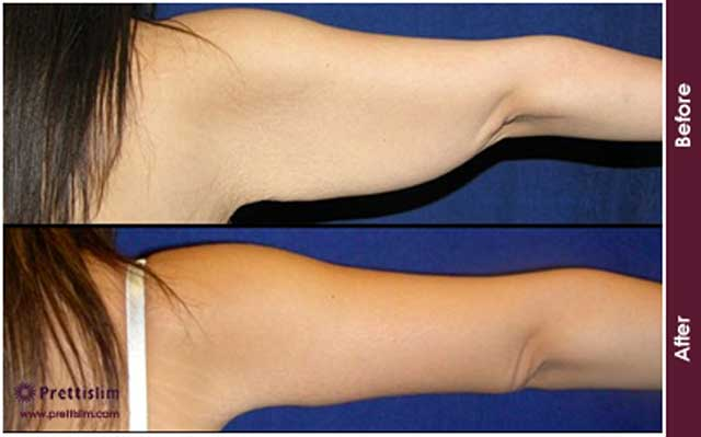 U-Lipo Arm Tuck Before and After