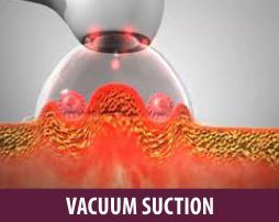 Vaccum Suction